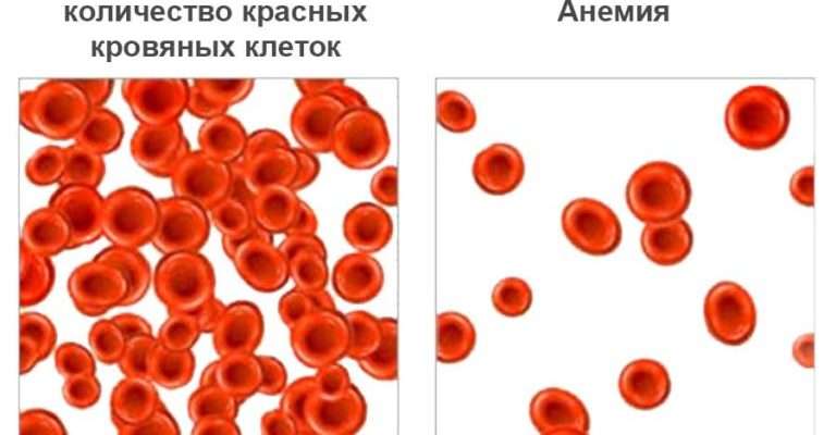 Что такое анемия и как избавиться он неё?