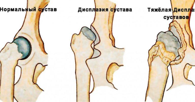 Дисплазия суставов