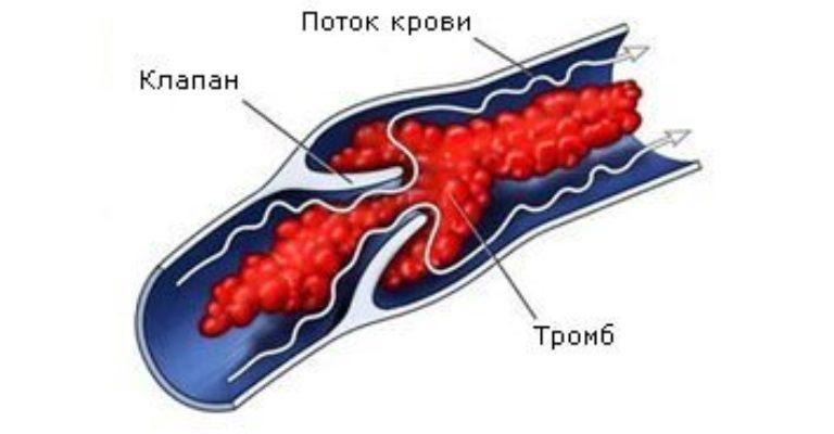 Флеботромбоз