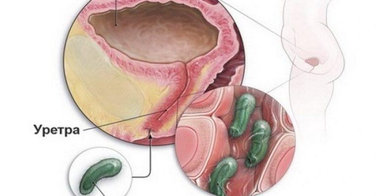 Инфекции в мочевыводящих путях