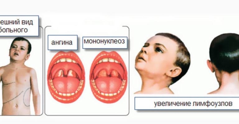 Мононуклеоз