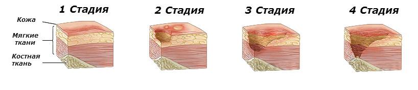 Что такое трофические язвы? Чем они грозят и как лечатся?