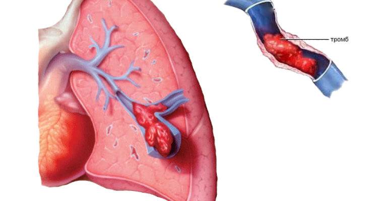 Тромбоэмболии