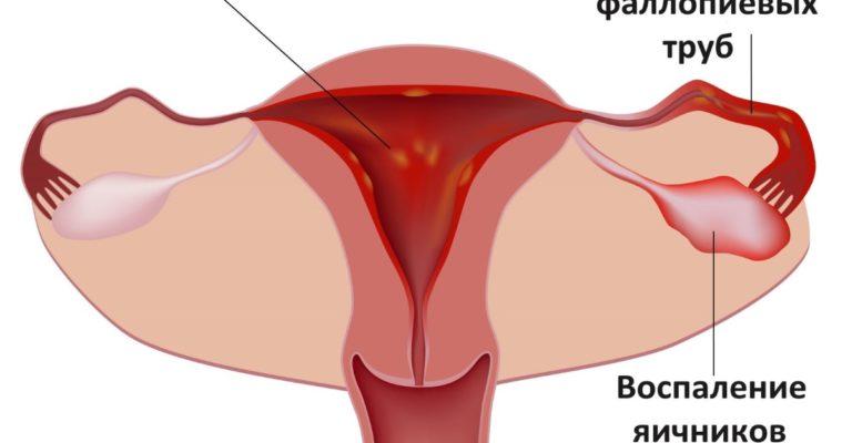 Воспаление матки и придатков