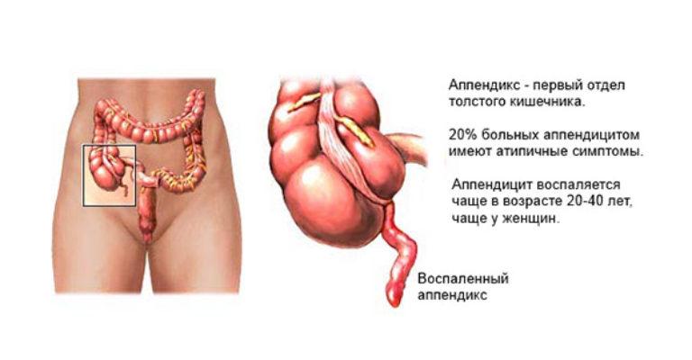 Острый аппендицит