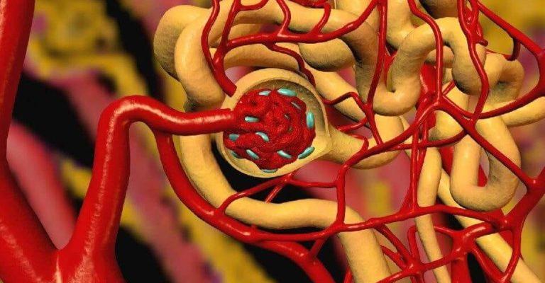 Нефрогенная гипертензия