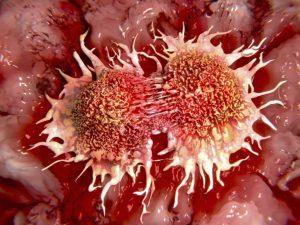 Лечение рака предстательной железы (простаты) в Шали