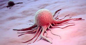Лечение онкологических заболеваний крови в Шали