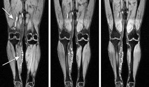 МРТ мягких тканей конечностей в Пятигорске