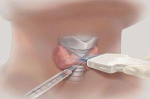 Трепан-биопсия мягких тканей под контролем УЗИ с гистологическим исследованием в Тереке