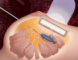 Пункционно–аспирационная биопсия молочной железы под контролем УЗИ, с цитологическим исследованием в Баксане