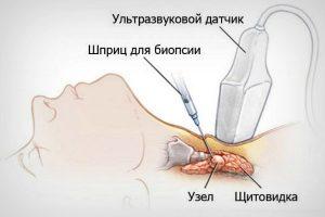 Пункционно-аспирационная биопсия лимфатических узлов, под контролем УЗИ с цитологическим исследованием в Кизилюрте