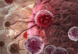 Иммуногистохимическое исследование гистологического материала опухоли молочной железы, Ki 67 в Георгиевске