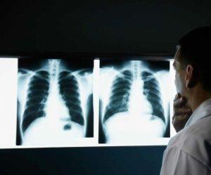 Малоинвазивные хирургические вмешательства при подозрении или при доказанном онкологическом процессе в Кисловодске