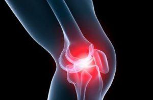 МРТ коленного сустава в Пятигорске
