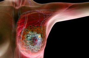 Склеротерапия молочных желез при фиброзно-кистозной мастопатии в Тереке