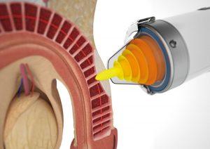 Ударно-волновая терапия (УВТ) при болезни Пейрони в Изобильном
