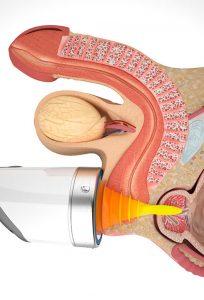 Ударно-волновая терапия (УВТ) при простатите в Нальчике