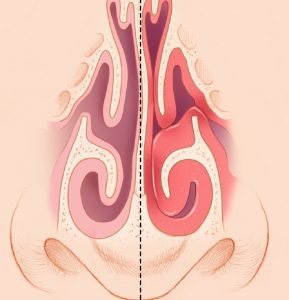 Лечение заложенности носа в Карабулаке