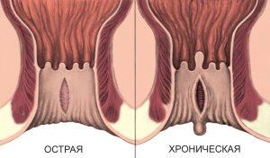 Лечение анальных трещин в Пятигорске